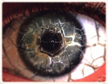 Dry Eye or Dysfunctional Tear Syndrome