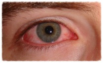 Chronic Red Eye